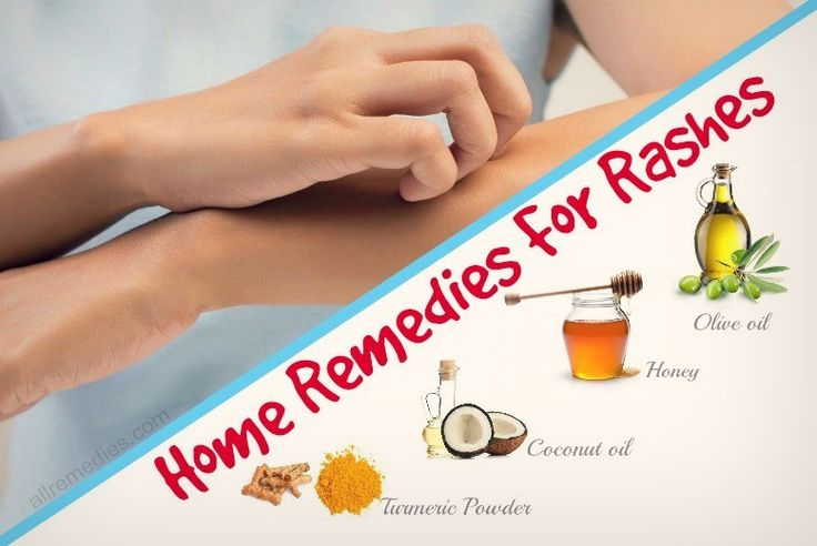 Top 24 Natural Home Remedies for Rashes on Body