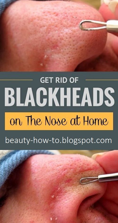 How to get rid of blackheads on the nose #HowToGetRidOfBrownSpots