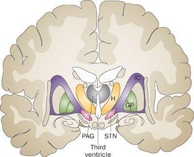 DBS, deep brain stimulation. GP, globus pallidus; H, hypothalamus; IC, internal capsule; PAG, periventricular–periaqueductal grey; STN, subthalamic nucleus.
