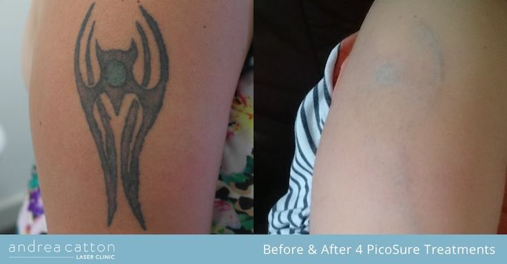 Upper arm tattoo before and after four PicoSure laser treatments. #tattooremoval #tattoos #inked #tattooregret