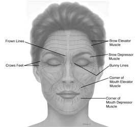 lift master controls wiring diagram eyebrow lift diagram 25+ best ideas about botox injection sites on pinterest ...