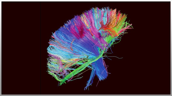 #PLAY: Muse – The 2nd Law – a bright, mind blowing, (music) world changing album!