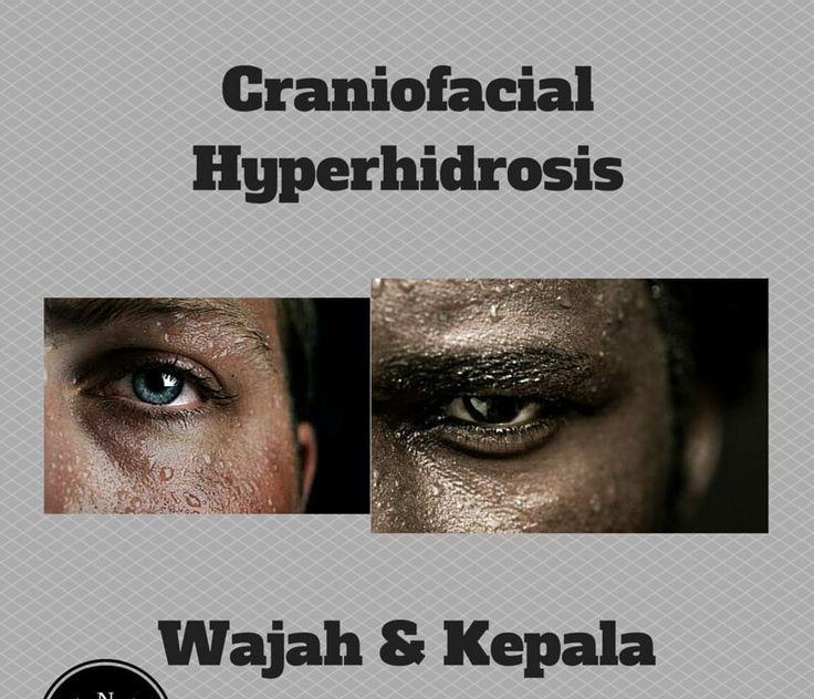 Craniofacial Hyperhidrosis, Apaan Tuh? Terapi Ionto @ IHHC Tangerang telah mengeringkan hyperhidrosis sejak2009