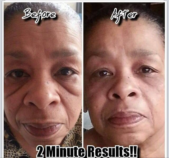 Instantly Ageless works on all skin types!!  2 minute results.....AHHHH-mazing   www.mistyrains.jeunesseglobal.com