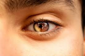 This is what my right eye mostly looks like♥ I love having Sectoral Heterochromia Iridium♥