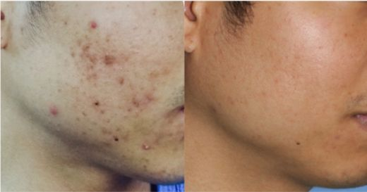 Watch Dr. Young Do a Chemical Peel on Himself & Discuss Acne Treatment & At Home Glycolic Peels. We have treated the worst Acne and have gotten great results. Find out about our secrets to clearing your Acne skin. We have a specific process with specific products that work for Active Acne. At Home Chemical Peels are also good for skin rejuvenation.  Click here for our specific instructions: http://www.drphilipyoung.com/acne-topical-medication/