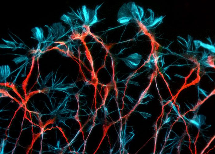 Dorsal root ganglion neurons, nerve cells that transmit sensory information to the brain, cultured from an embryonic rat.  Image by Dr. Heiti Paves, Laboratory of Molecular Genetics.