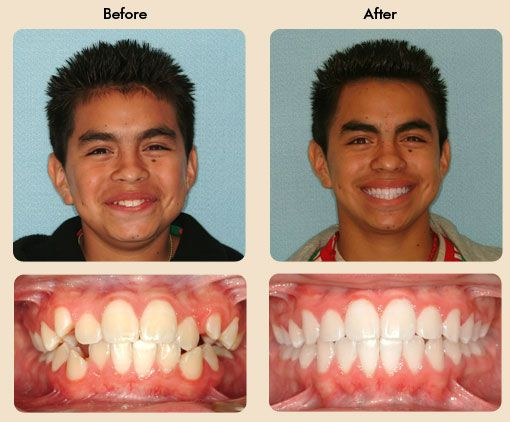 how to look after your teeth with braces