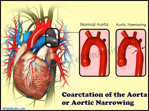 What are the Risk Factors for Coarctation of the Aorta (COA) or Aortic Narrowing? Read: http://www.epainassist.com/abdominal-pain/aorta/coarctation-of-the-aorta-or-aortic-narrowing-risk-factors-complications-diagnosis
