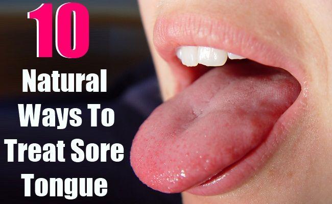10 Natural Ways To Treat Sore Tongue