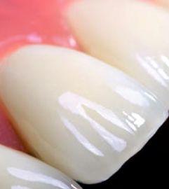Cerámica dental convertida en arte