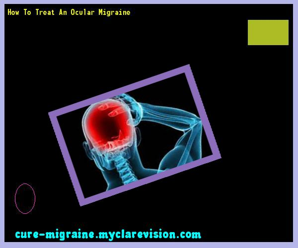 How To Treat An Ocular Migraine 184747 - Cure Migraine