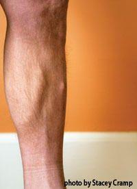 A Primer on Lower-Leg Pain  http://www.runnersworld.com/injury-treatment/a-primer-on-lower-leg-pain