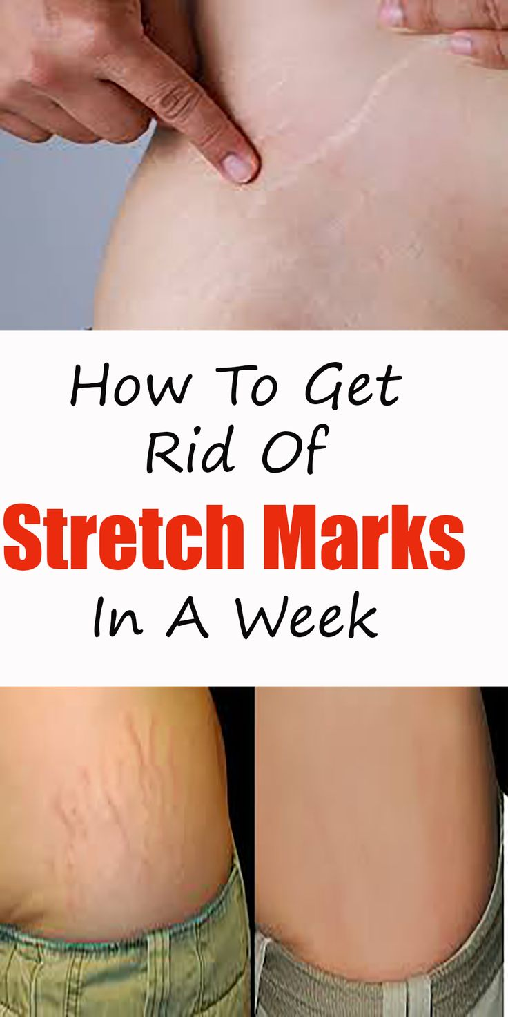 How to get rid of stretch marks in a week in 2020 hair