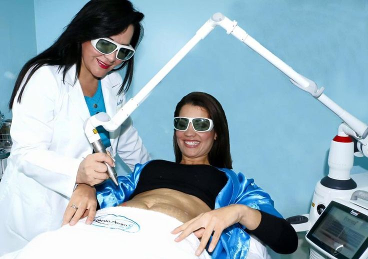 Kalieska Arroyo | Eliminando Estrías con Tratamiento Láser Fotona 4D