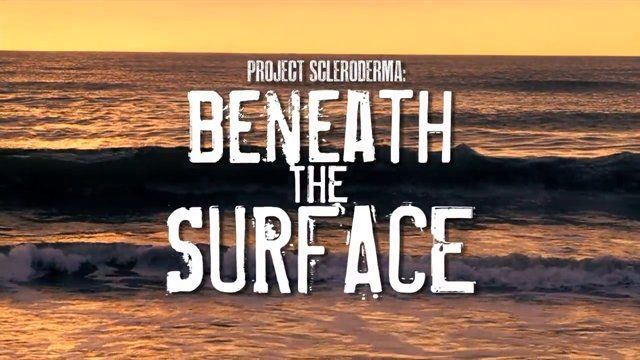 """Thanks to Bayer Pharma AG and Actelion for their support.  Narrated by Bob Saget, """"Project Scleroderma: Beneath The Surface"""" is a film that documents the grass-roots mission of a young woman, Christy McCaffrey, from Philadelphia working to raise awareness for a scarcely known disease that took her mother's life."""