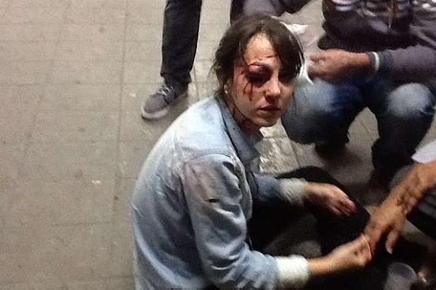 """A repórter Giuliana Vallone, do jornal """"Folha de S.Paulo"""", que foi ferida no olho com balas de borracha"""