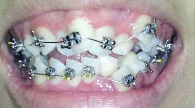 Chỉnh nha niềng răng mọc lệch lạc là quá trình nắn chỉnh lại hàm răng mọc lệch lạc bằng việc sử dụng các khí cụ nha khoa mắc cài hoặc không mắc cài gắn vào răng giúp sắp xếp, dịch chuyển lại răng mọc theo đúng vị trí, tạo một hàm răng thẳng đều tự nhiên.