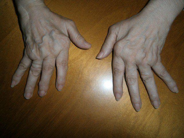 remedios para curar el acido urico que se puede comer para el acido urico acido urico alto y dolor de rodillas