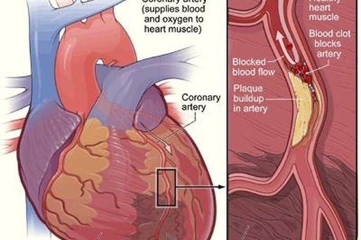 ¿Cuánto duran los síntomas de un ataque cardiaco? | Muy Fitness