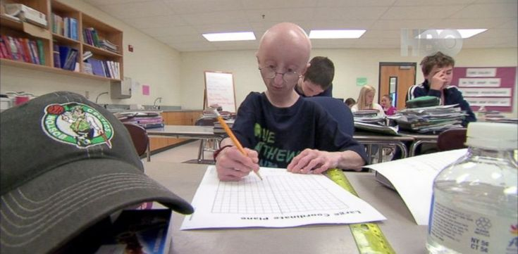 PHOTO: Sam Berns and his family have been leading the fight against progeria