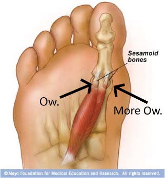 The pain I live with... Sesamoid bones!     Its why I started doing bikram yoga..  check out my blog about the removal of my sesamoid   www.vanitysanityandhealth.com