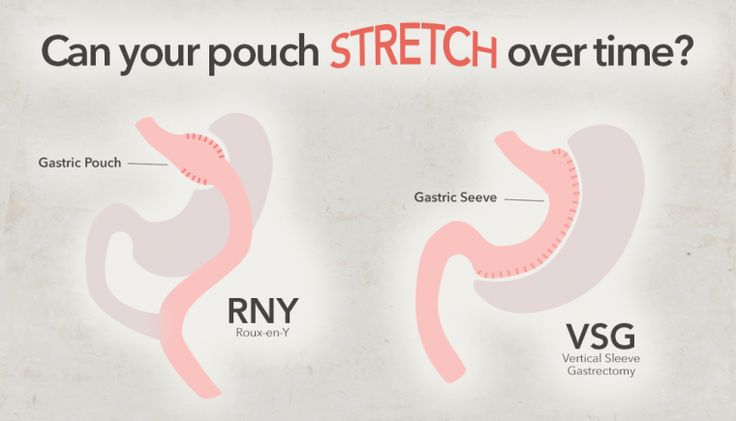 Can your pouch stretch over time? Weight Loss Surgery Resources for Vertical Sleeve Gastrectomy, RNY, Duodenal Switch, LAP-BAND and more.ObesityHelp