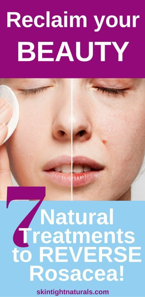 7 Natural Treatments to Reverse Rosacea For reclaim your beauty. http://skintightnaturals.com/how-to-get-rid-of-rosacea/ #SkinBrightening #SkinLightening #skinwhitening#VictoriasSkinTightNaturals #SkintightNaturals #SkinCare #VictoriasBodyShoppe #Wrinkles #Pimples Via @tightskincare