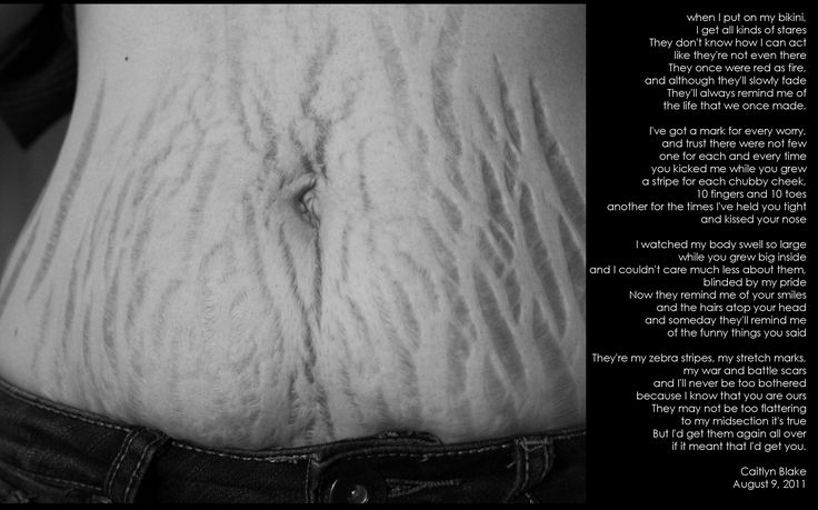 Stretch Marks: Wear them with pride To the new Mommies out there,