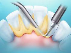 Зубной камень - как убрать народными средствами?