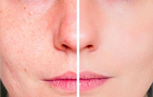 L'astuce de grand-mère contre les imperfections du visage noté 3.64 - 11 votes Petites cicatrices, points noirs et acné ? Grand-mère a ce qu'il vous faut ! Il vous faut : – du bicarbonate de soude bien sûr ! Comment faire ? 1/ Humectez votre visage avec de l'eau. 2/ Saupoudrez vos mains de bicarbonate …
