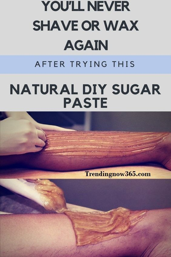 YOU'LL NEVER SHAVE OR WAX AGAIN AFTER TRYING THIS NATURAL DIY SUGAR PASTE. SO SIMPLE AND IT WORKS! http://www.trendingnow365.com/2017/06/27/youll-never-shave-or-wax-again-after-trying-this-natural-diy-sugar-paste-so-simple-and-it-works/