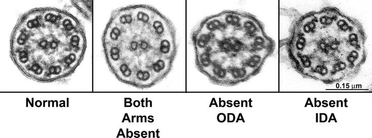 primary ciliary dyskinesia | ... and genetic aspects of primary ciliary dyskinesia/Kartagener syndrome