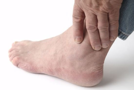 Home Remedies for Gout | Organic Facts
