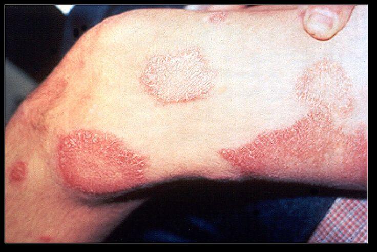 Manchas en la piel, síntoma frecuente de la lepra