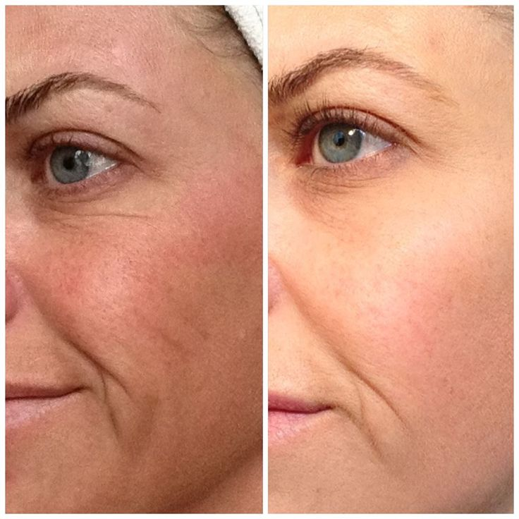 Great results with Nerium!  www.angell73.nerium.com