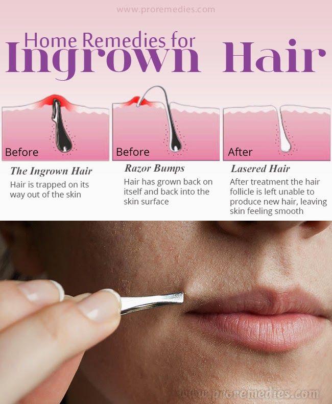 Home Remedies For Ingrown Hair Useful Tips Pinterest
