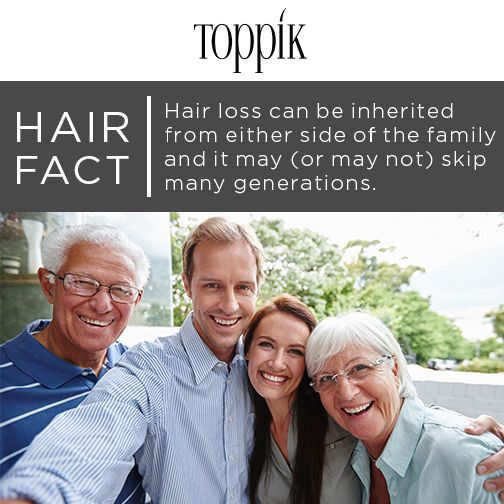Hair loss does not just come from the mother's side of the family. #Toppik