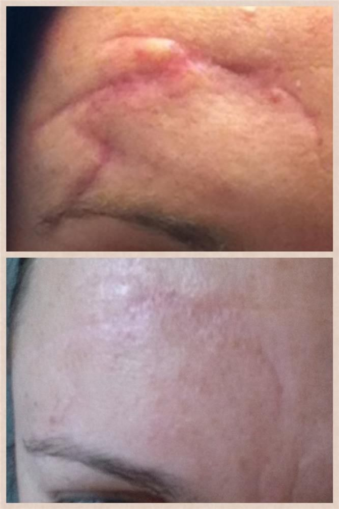 This ranks right up there with my all time favorite Nerium before/after photos. This is after only ONE month and ONE bottle of Nerium AD. www.AbsoluteResults.Nerium.com