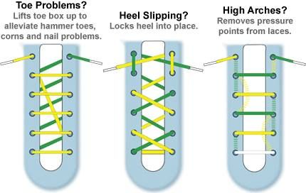 Ways To Tie Shoes For Heel Pain