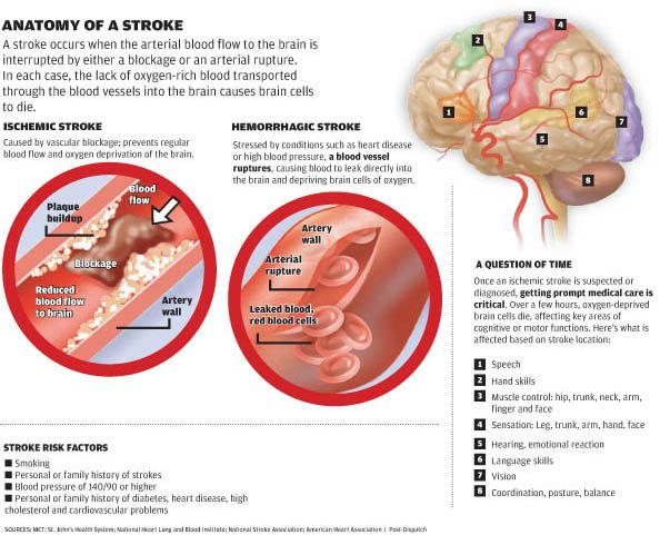What Foods Can You Eat To Prevent A Stroke