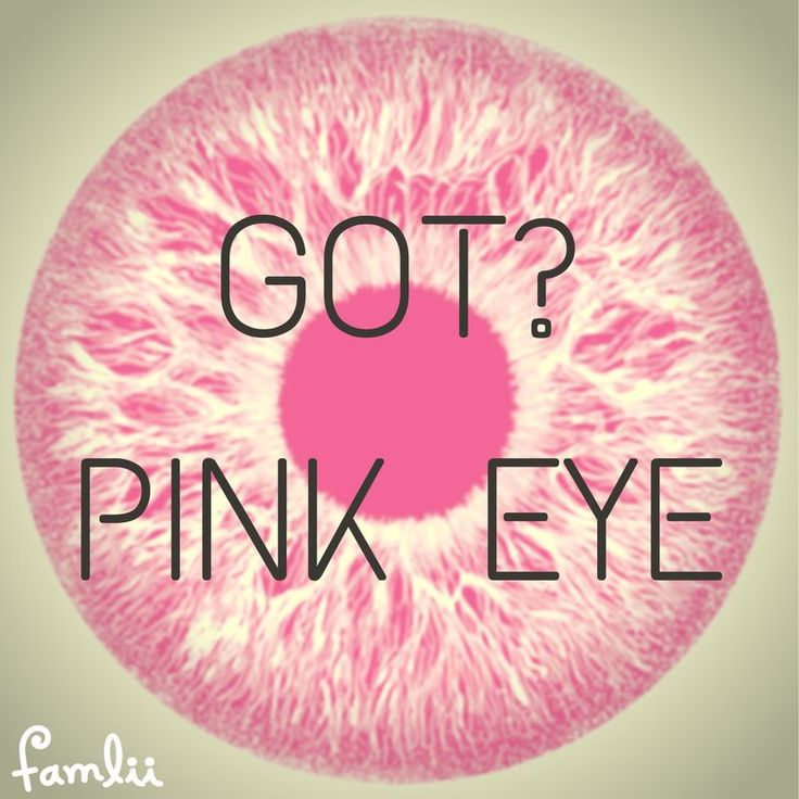 Got Pink Eye? Eye-Opening Advice for Toddler Eye Infections www.famlii.com/conjunctivitis-symptoms-pink-eye-in-toddlers/