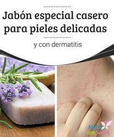 Jabón especial casero para pieles delicadas y con dermatitis Las pieles delicadas y con dermatitis requieren productos cosméticos lo más naturales posibles y libres de sustancias agresivas para la piel.