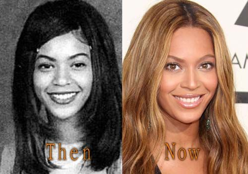 Beyonce Plastic Surgery Before and After #beyonce #celebritysurgery #nosejob