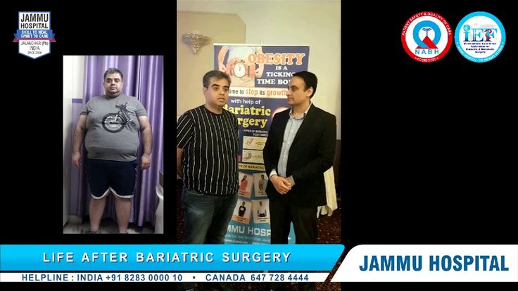 http://www.jammuhospital.com, Mini gastric bypass surgery, mini gastric bypass surgery india, mini gastric bypass surgery Punjab, mini gastric bypass surgery Ludhiana, mgb surgery, mgb surgery india, mgb surgery Punjab, mgb surgery Ludhiana, best mgb surgeon india, best mgb surgeon Punjab, best mgb surgeon jalandhar, mini gastric bypass surgery new delhi, mgb surgery new delhi, mini gastric bypass surgery Chandigarh, mgb surgery Chandigarh,