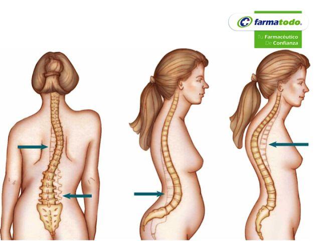 Las hernias en sheynom el departamento de la columna vertebral el tratamiento