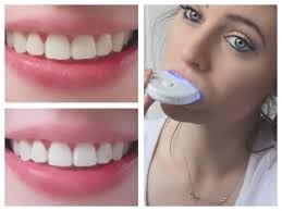 Different Types Of Teeth Whitening Procedures And Methods - http://emergencydentalcaretips.com/different-types-of-teeth-whitening-procedures-and-methods/ Learn about teeth whitening dentist cost teeth whitening laser teeth whitening natural teeth whitening methods teeth whitening prices professional teeth whitening near me teeth bleaching kit in office teeth whitening
