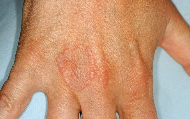 Granuloma Annulare Symptoms, Causes And Treatment