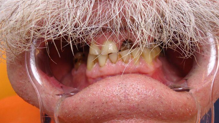 2 patient -Tous les traitements illustrés dans notre galerie de photos ont été réalisés à l'intérieur de notre clinique par nos professionnels de la santé dentaire. - Top Dentiste Budapest, Hongrie