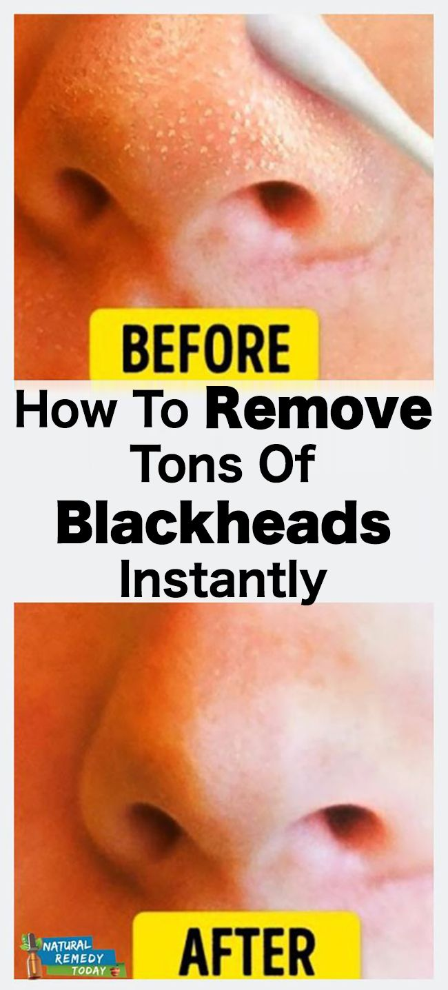 How To remove Tons Of Blackheads Instantly